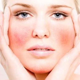 aderma piel reactiva