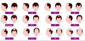 analizamos el nivel de calvicie de cada uno de nuestros pacientes